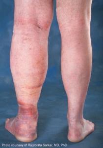 leg_swelling_lrg